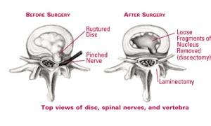 disectomy lumbar