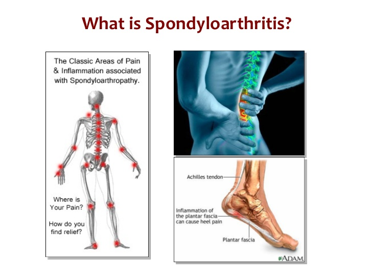 what-is-spondyloarthritis-what-is-psoriatic-arthritis-5-728