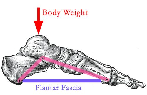 Plantar Fascia Rupture Pain Physiotherapist